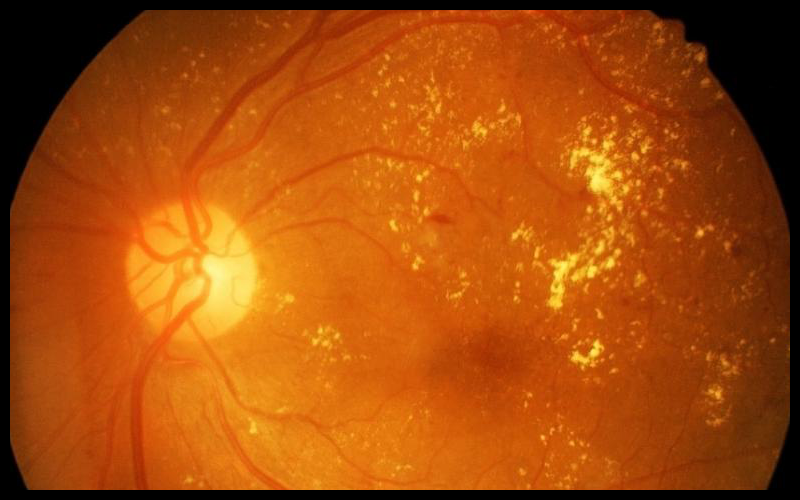 Diabetic and Glaucoma Eye Care
