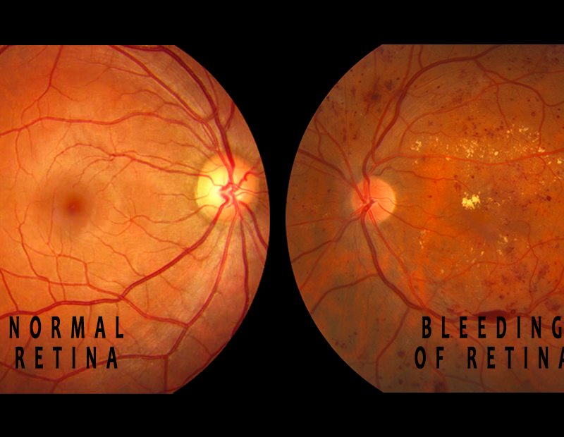 Bleeding causing diabetic retinopathy