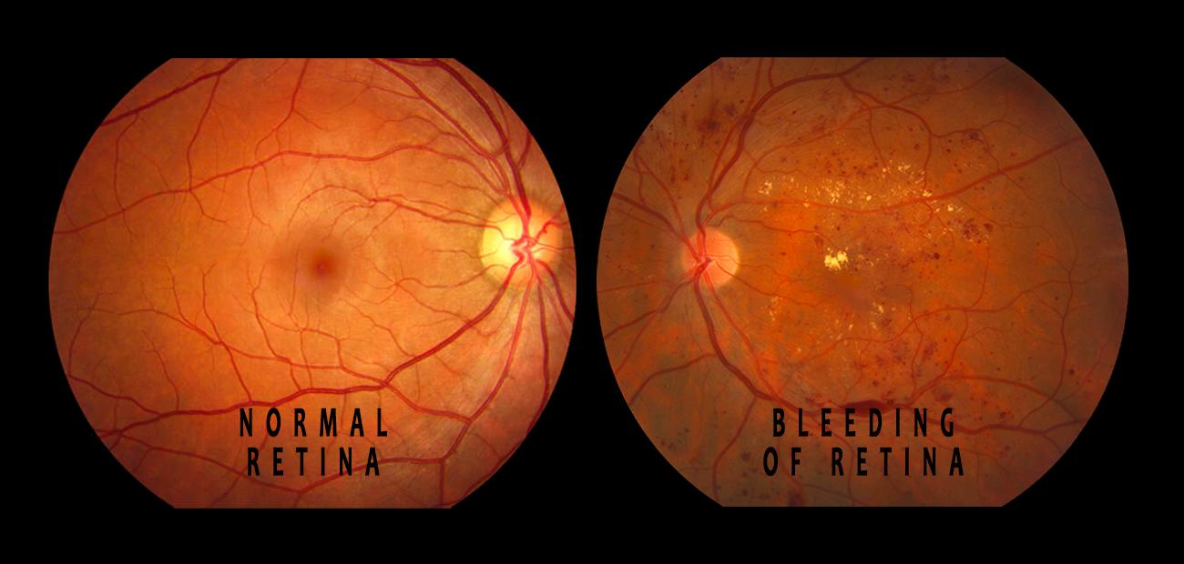 Bleeding causing diabetic retinopathy