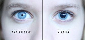 Dilated eyes during dilation examination