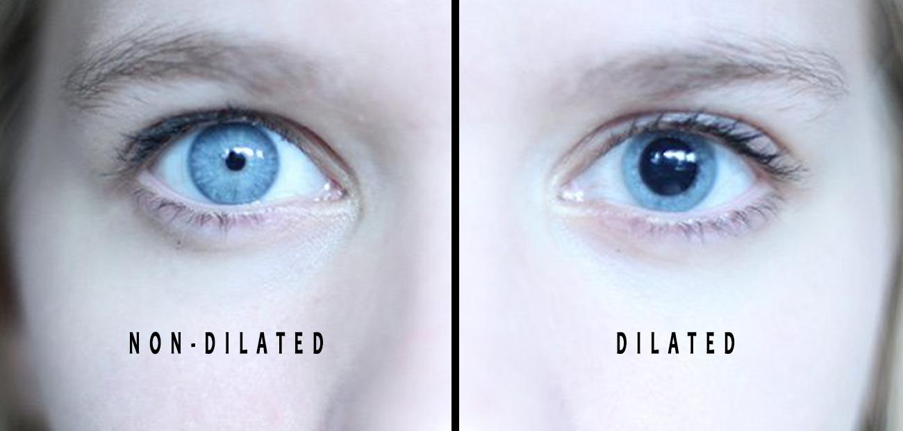 Dilated eyes during dilation examination
