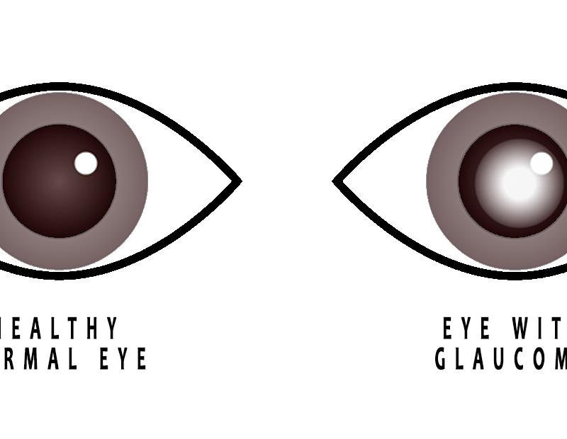 Normal eye versus eye with glaucoma - treatmentsa