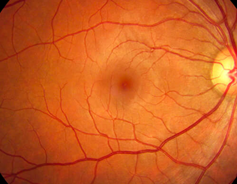 Retinal photography - images of retina for health of eyes