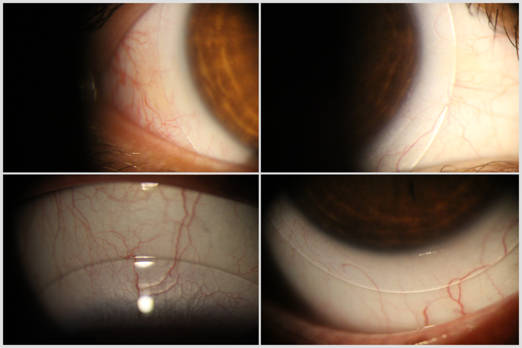 Case DN Scleral OD