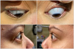 Case DN Eyes Scleral