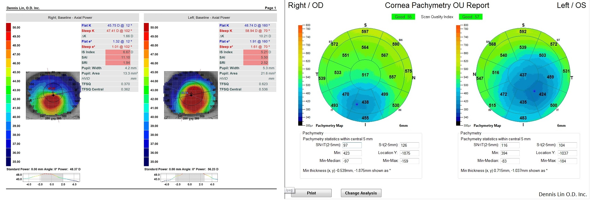 Keratoconus Topography and Pachymetry Example CL