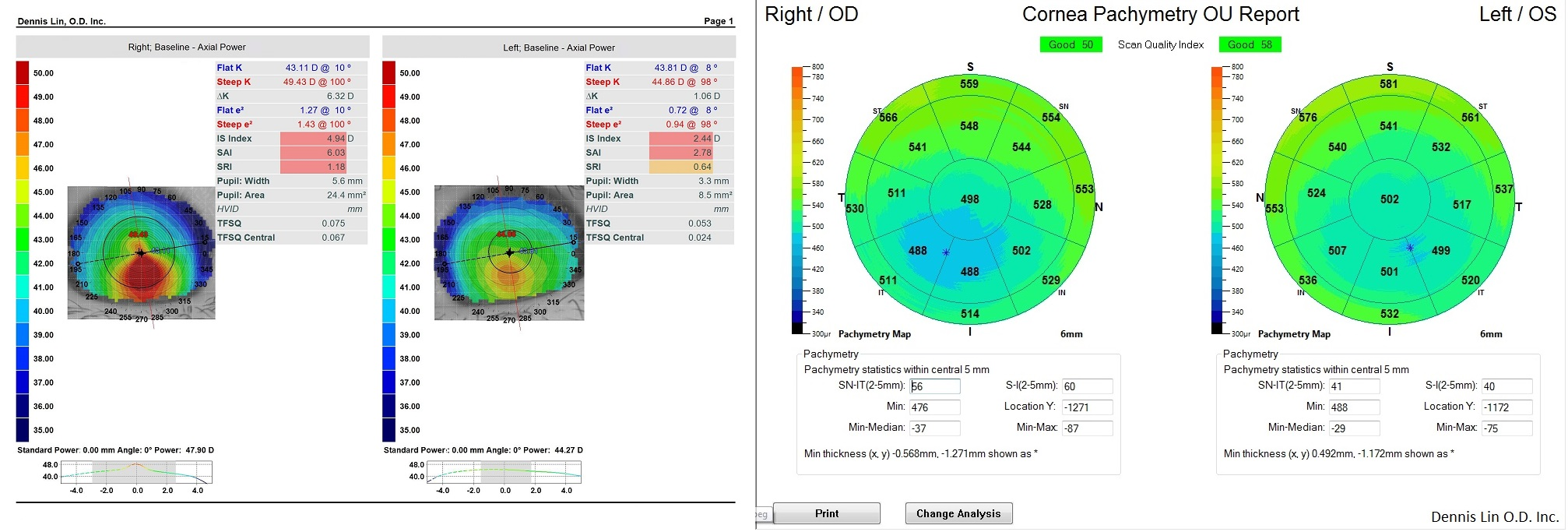 Keratoconus Topography and Pachymetry Example JB