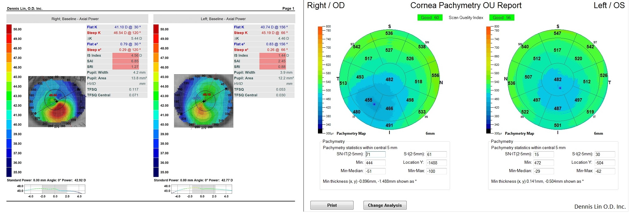 Keratoconus Topography and Pachymetry Example LB