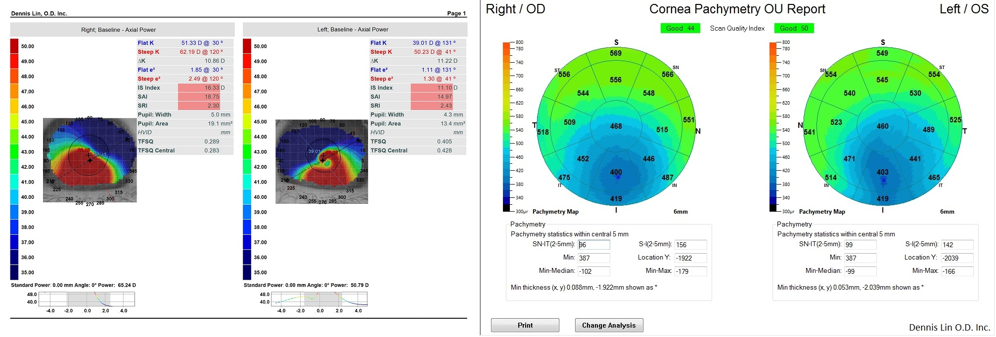 Keratoconus Topography and Pachymetry Example MM