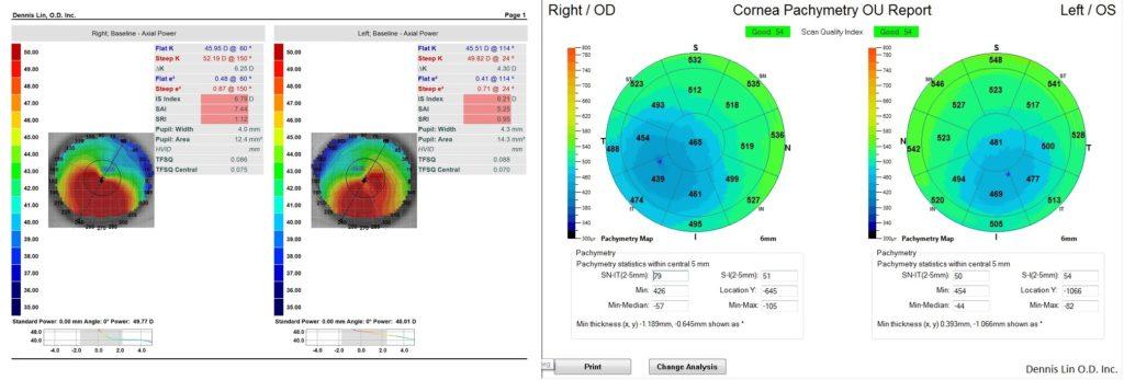 Keratoconus Topography and Pachymetry Example NG