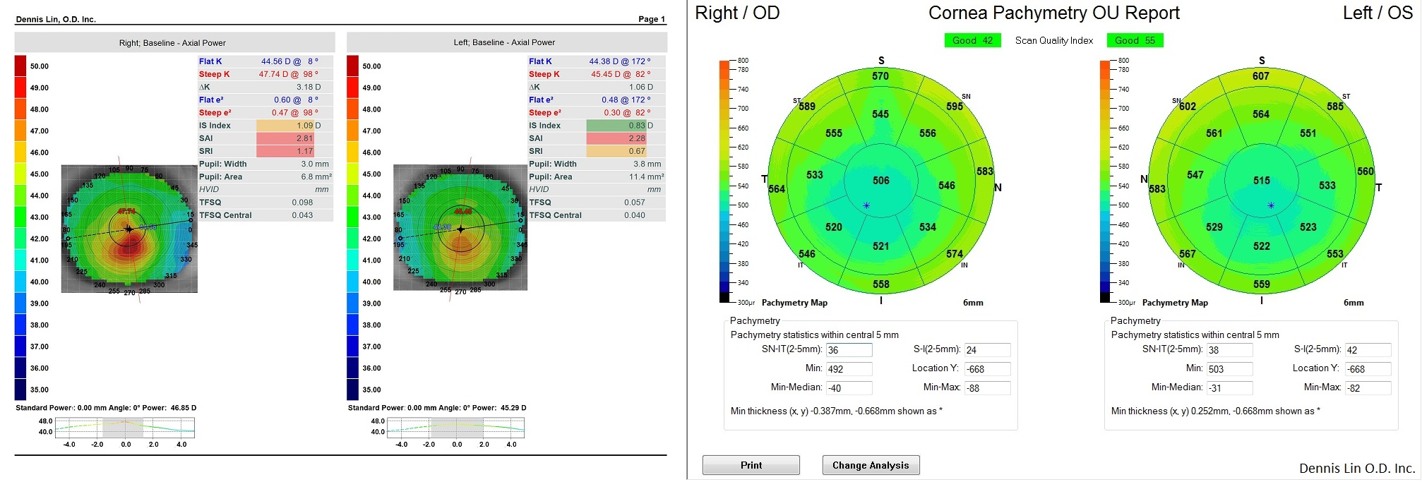 Keratoconus Topography and Pachymetry Example OR