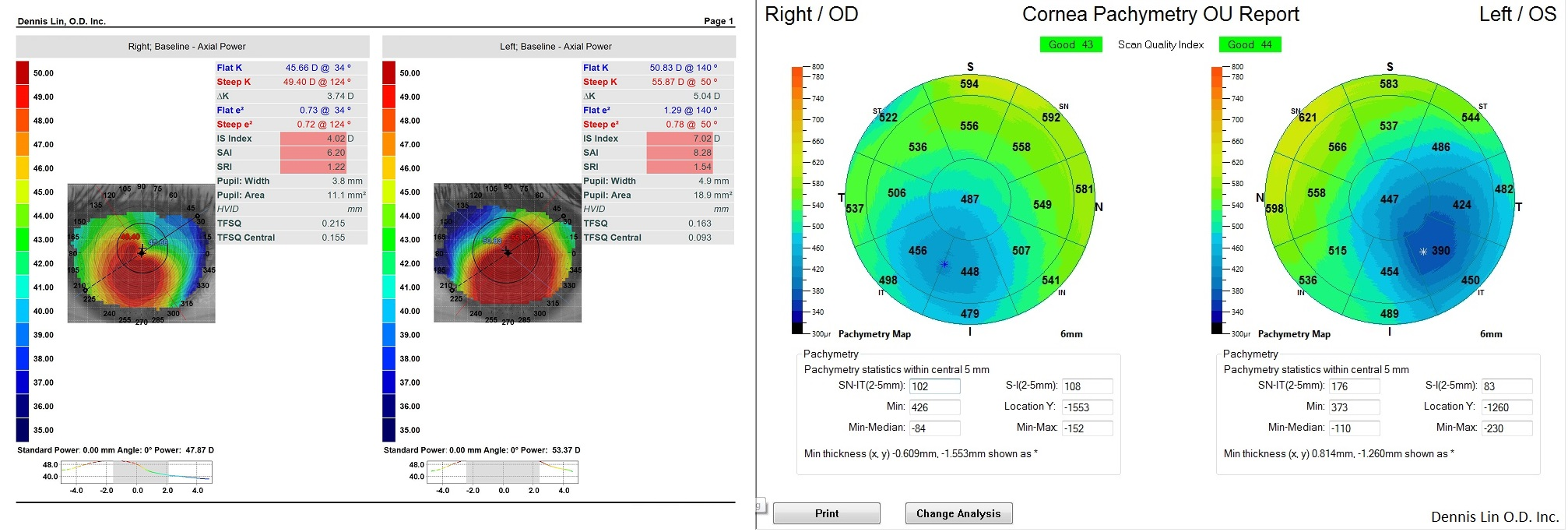 Keratoconus Topography and Pachymetry Example SM